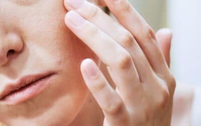 What Causes Eczema? Symptoms, Causes, and Treatment