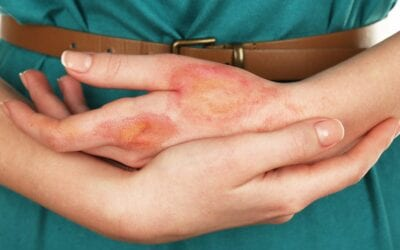 What is the Impact of Burn Scars on Your Skin?