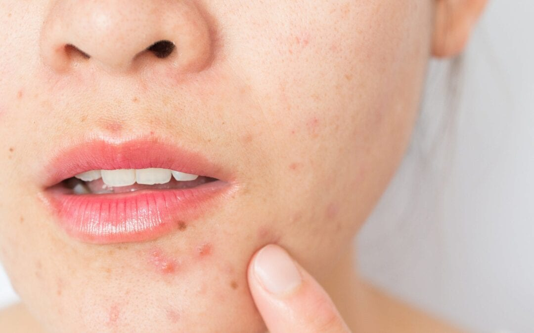 Acne Scars – Causes, Prevention, and Treatment