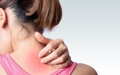 Simple Solutions for Itchy Skin