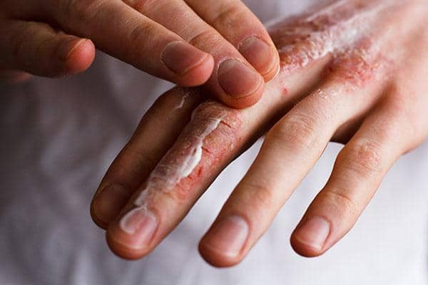 itchy skin causes